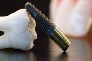 Diş Çekimi Ve Cerrahi İşlemler Sonrası Tavsiyeler
