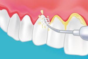 Dişleri Temizletmek Zararlı Mıdır?